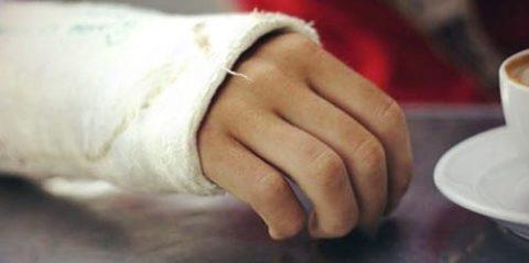 Фото: симптоматические проявления поврежденной целостности костной ткани руки