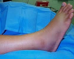 Фото: способы определения ушиба или нарушения целостности костной ткани ноги