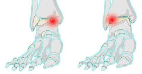 Главные рекомендации для предоставления первой медицинской помощи при переломе кости