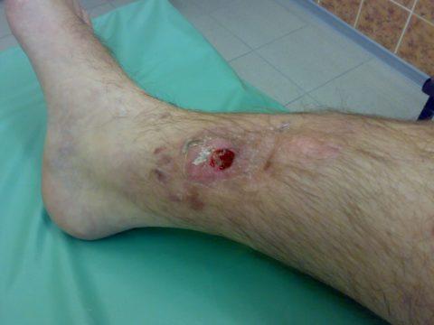 Гнойник при хроническом остеомиелите после перелома голени