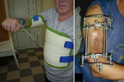 Изломы тела (диафиза) плечевой кости