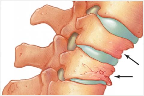 Изменения высоты тела позвонков, вызванные компрессионным типом перелома