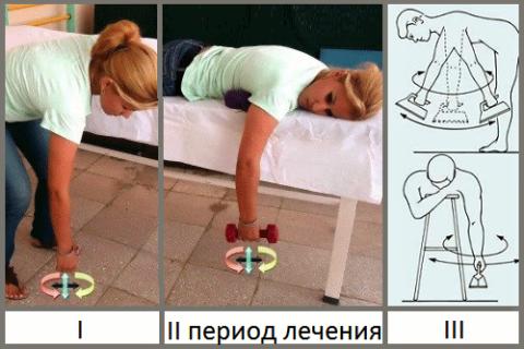 Лечебный эффект упражнений зиждется на систематичности и постепенном усложнении