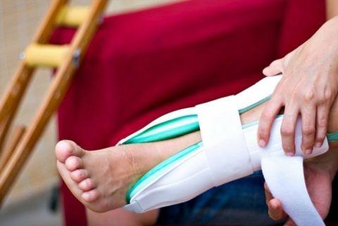 Лечение повреждения костных тканей предусматривает и применение различных наружных лекарственных средств.