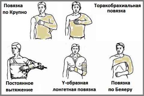 Некоторые из видов классической иммобилизации при переломах в области плеча
