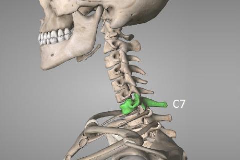 Нижние processus spinalis шеи наиболее хрупкие, а последний С7 – самый выступающий