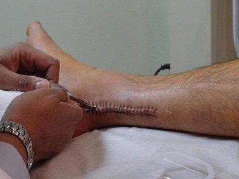 Операция по удалению металлоконструкций после перелома ноги