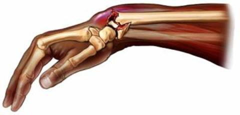 Особенности движений поврежденной верхней конечностью после травмы