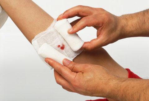 Особенности обработки гнойных ран.