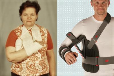Переломы верхнего конца плечевой кости