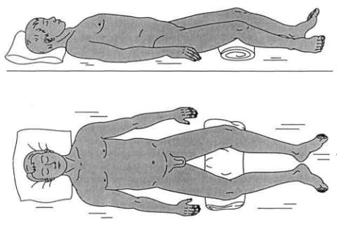 Поза Лягушки – метод обездвиживания и исходное положение в I периоде лечения переломов поперечных отростков