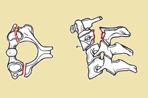 При травме Палача (Висельника) у Аксиса ломается не остистый отросток, а ножки дуги