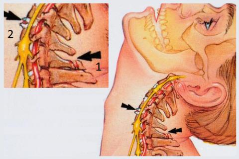 Разновидность Травмы землекопа: слом processus spinalis (1), разрыв межпозвоночного диска (2)