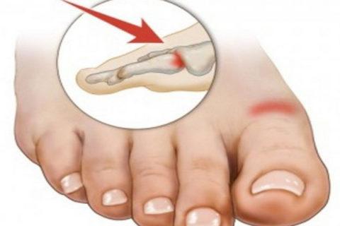 Разработка функциональных возможностей ноги после полученной травмы
