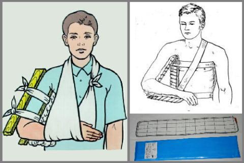 Самодельная шина для транспортировки и наложение шины Крамера при переломах плеча