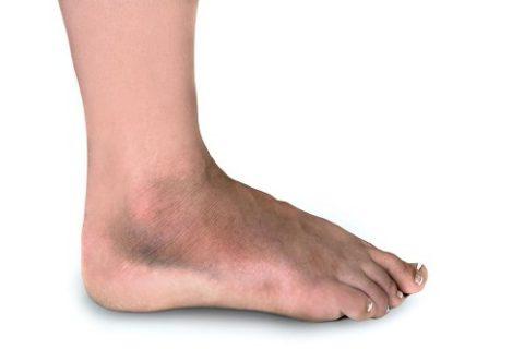 Симптоматические особенности ушибов и переломов ноги