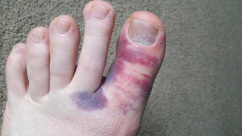 Способы устранения кровотечений и дезинфицирования открытых ран на ноге