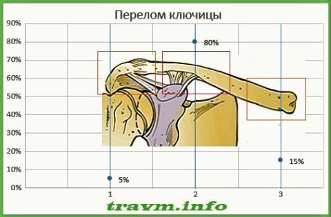 Статистика сломов ключицы: акромиальный конец (1), тело (2), грудинный конец (3)