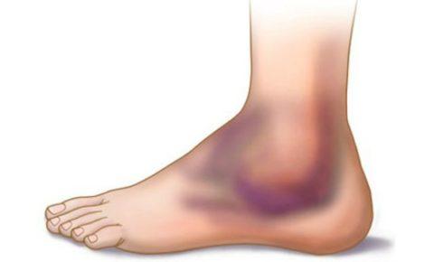 Визуальная деформация и укороченность нижней конечности при переломе