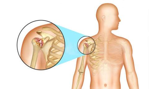 Воспаления плеча при металлозе имплантатов