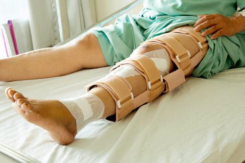 Фиксация костной ткани после повреждения целостности для быстрого восстановления