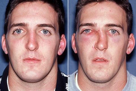 Фото: анатомические особенности перелома костной структуры носа на лице человека