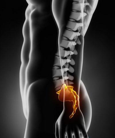 Фото: характерные особенности нарушения целостности копчиковой кости