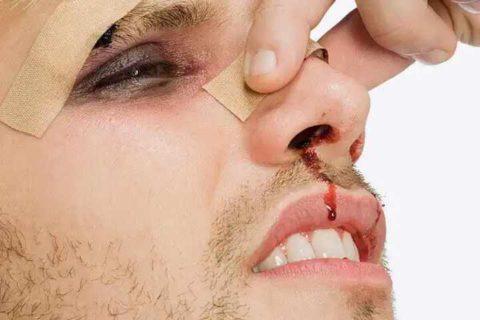Главные симптоматические характеристики при нарушенной целостности носовой кости