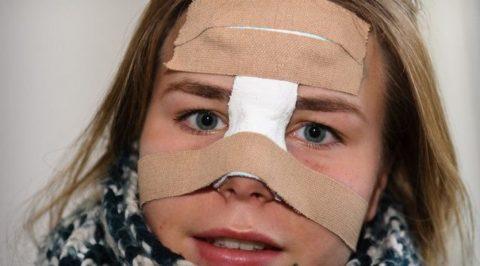 Как правильно предоставлять первую медицинскую помощь при подозрении на перелом носа