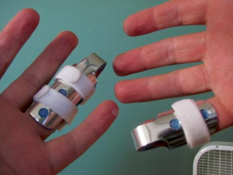 Медицинская шина при переломе фаланг пальца