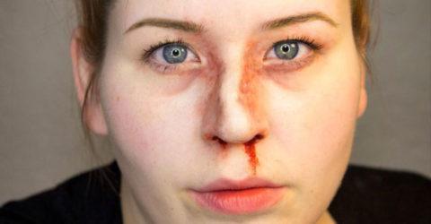 Механизм возникновения повреждений целостности носовой костной структуры