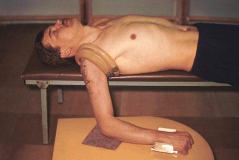 На фото положение по Куто после выявления нежной костной мозоли на местах перелома