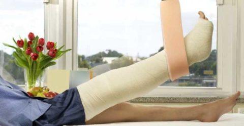 Накладывание гипсовой фиксирующей повязки для эффективного обездвиживания ноги