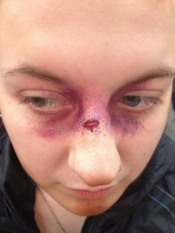 Первая помощь при открытом переломе носа из-за сильного удара