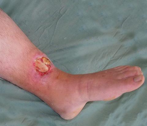 Причины проведения операции при открытых травмах нижних конечностей