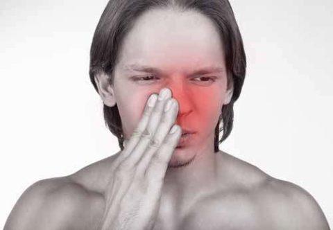 Признаки повреждения носовой кости со смещением в открытой форме