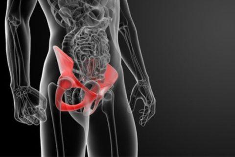 Симптоматика переломов краев вертлужной впадины таза