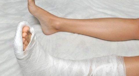 Сроки ношения гипсовой повязки для восстановления целостности лодыжки