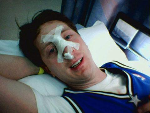 Возможные варианты лечения сломанного носа в человеческом организме