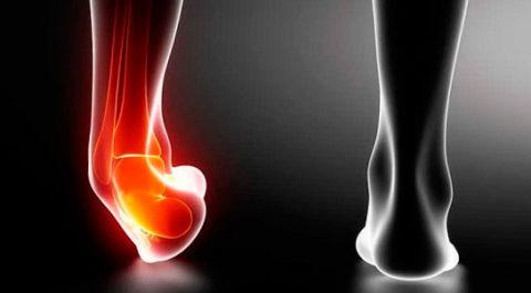 Выраженная симптоматика при поврежденной целостности пятки в организме человека