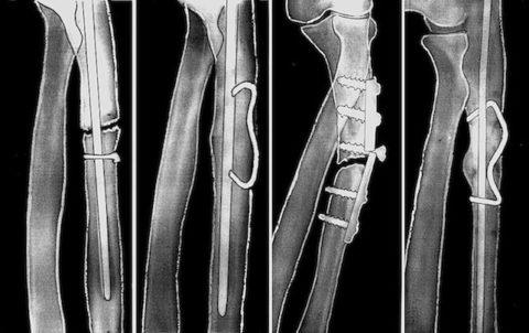А более сложные конструкции с угловой стабильностью помогают достичь фиксации при серьезных непростых повреждениях.