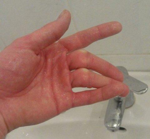 Деформация при переломе пальца верхней конечности