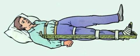 До приезда врачей пострадавшего следует уложить на ровную твердую поверхность и обездвижить поврежденную конечность подобным образом.