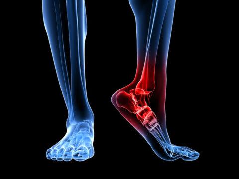 Фото: анатомические характеристики сломанной стопы у человека