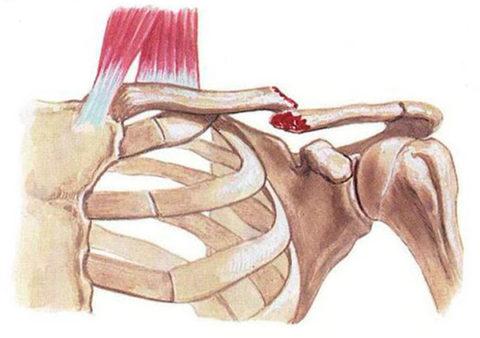Фото: анатомические особенности нарушенной целостности ключичной кости человека