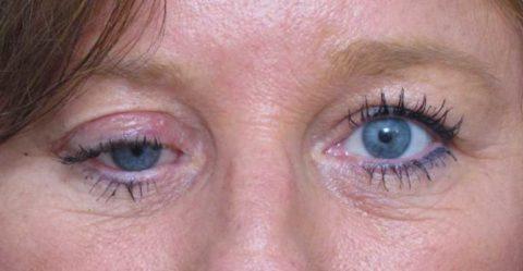 Фото: характерные особенности сломанной глазницы у человека