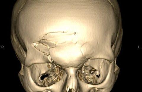 Фото: различные осложнения при линейном повреждении целостности черепа у детей