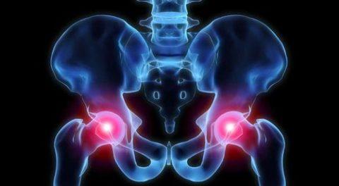 Фото: серьезность последствий сломанных тазовых костей разной степени тяжести травмы