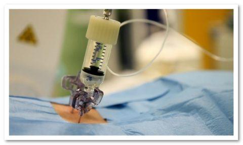 Главные отличительные черты консервативного и оперативного лечебных методик