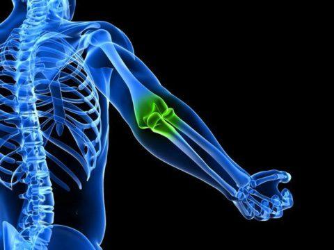Характерные особенности реабилитационного периода после вывиха локтевого сустава человека